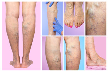 photo of legs varicose