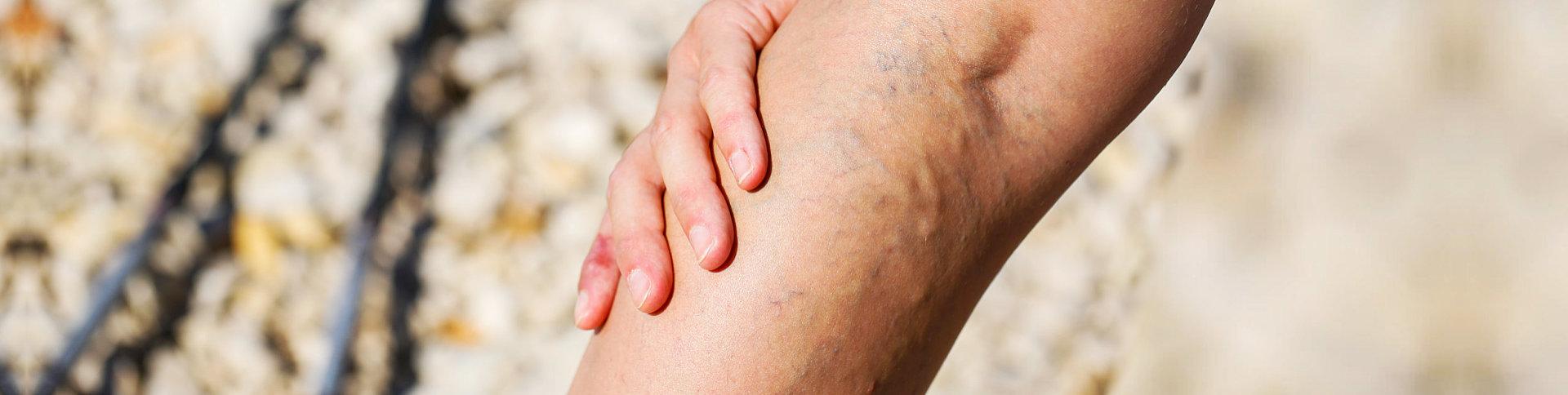varicose at the leg